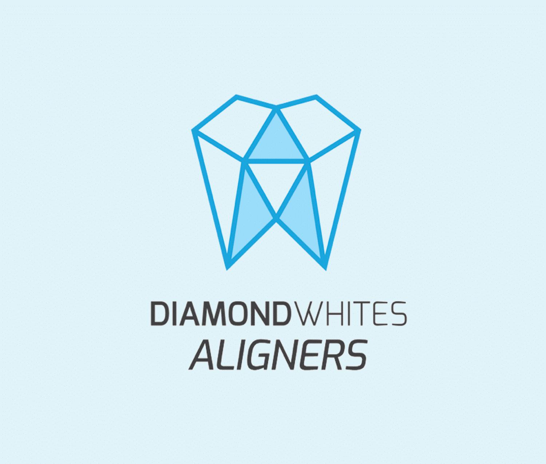 Diamond Whites Aligners